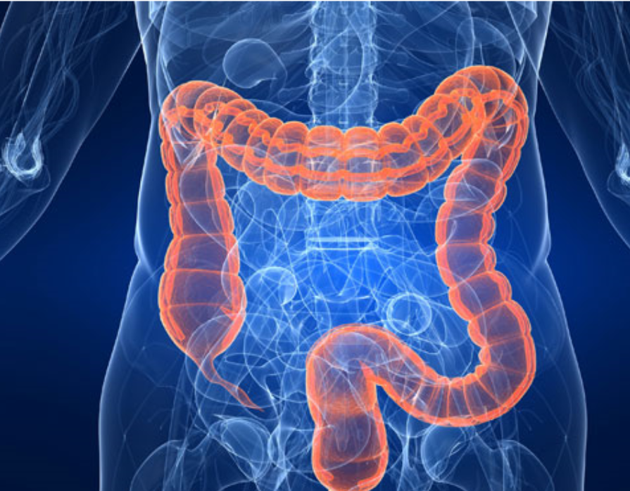 Girl doing yoga